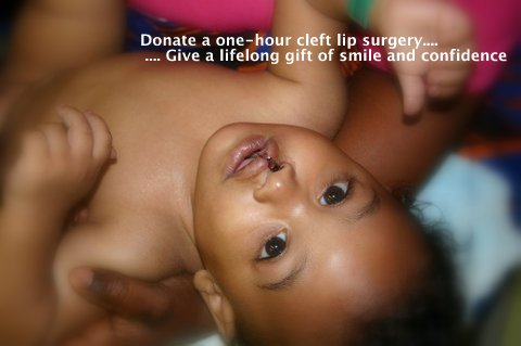 after photo cleft lip repair liberia