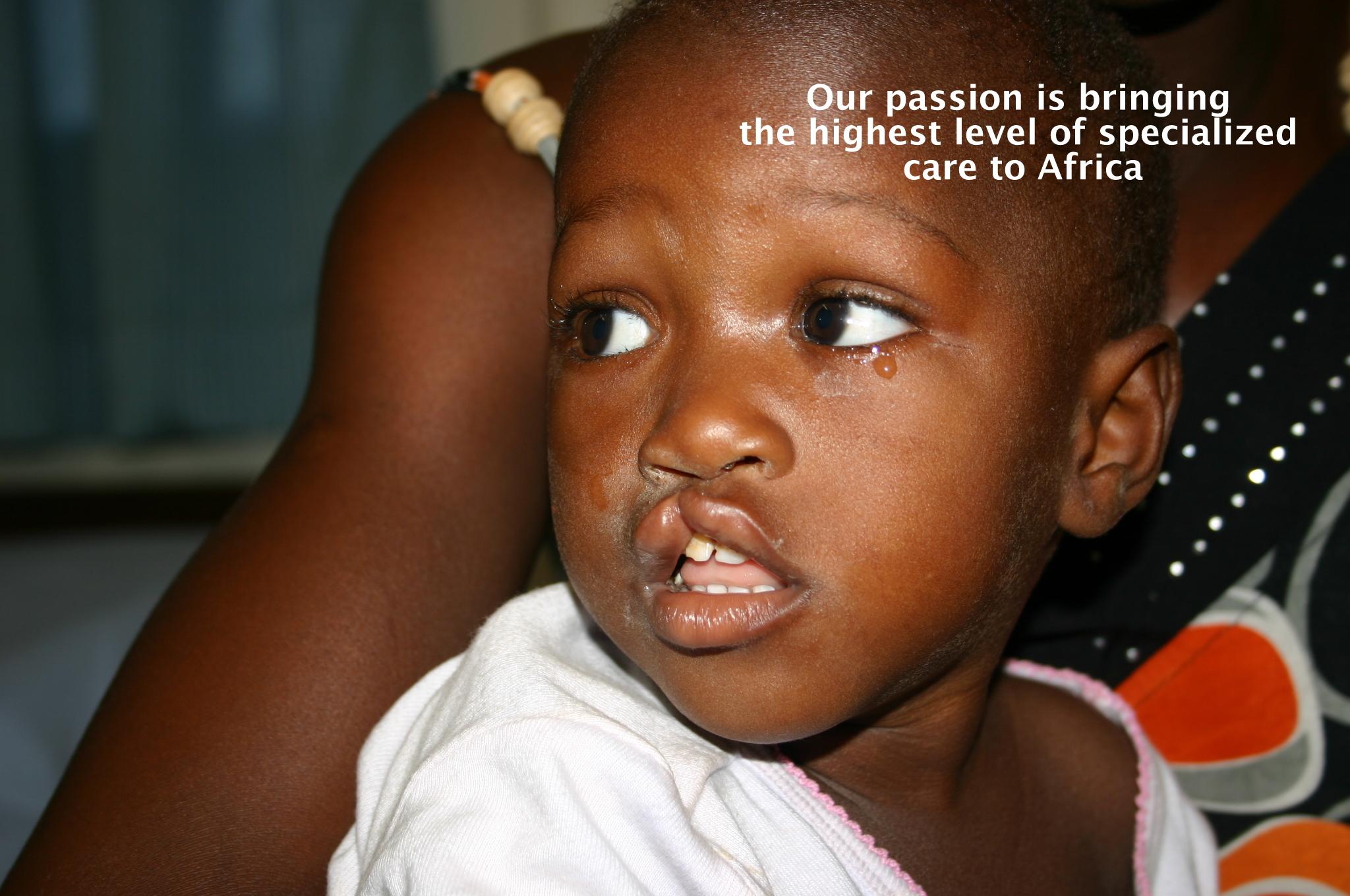 cleft lip liberia